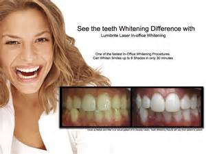 lincoln teeth whitening picture 9