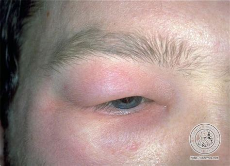 what is r herpes picture 15