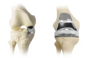 knee total joint replacements picture 7