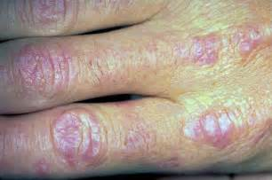 itchy skin liver enzymes picture 13