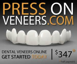 cheapest snap on veneers online picture 7