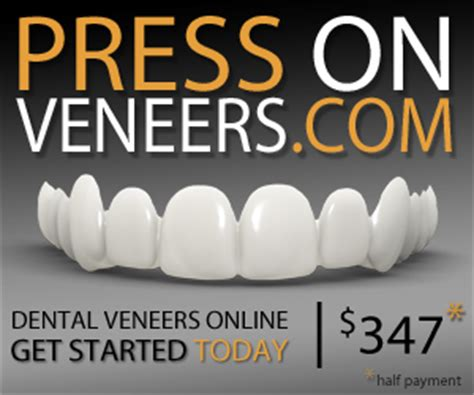 cheapest snap on veneers online picture 6