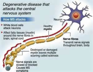 multiple sclerosis h pain picture 6