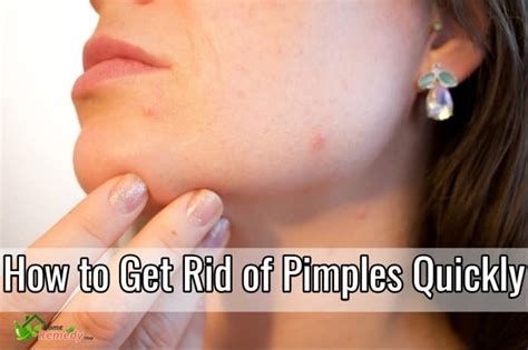 how to get rid of zits and acne picture 5