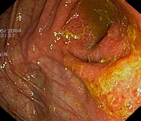 what is melanosis in the colon picture 4