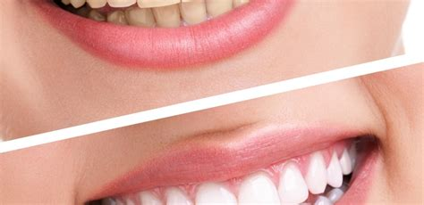 cost to whiten teeth picture 18