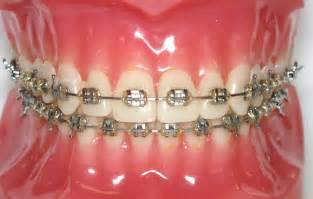 getting bracets off teeth picture 1