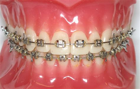 teeth braces picture 6