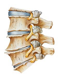 degenrative joint diease in the spine picture 4