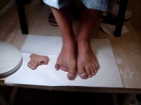 women with amputated fingers and toes picture 6