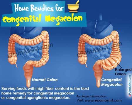 colon nerve problems picture 6
