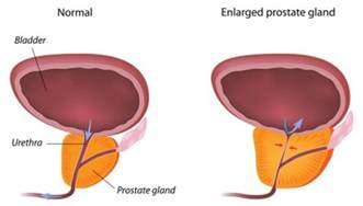 Transurethral resection of the prostate turp picture 7