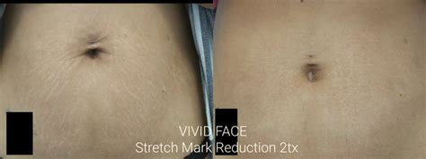 stretch mark removal florida picture 2