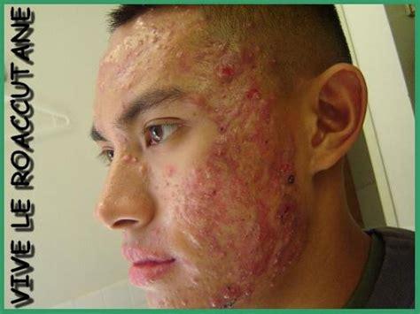 adolescent acne picture 10