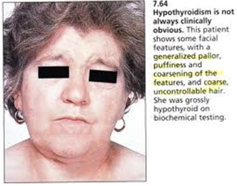 amylase deficiency syptoms weight gain picture 10