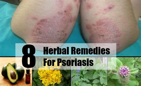 herbal psoriasis remedies picture 5