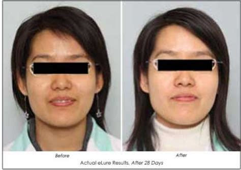 wajee whitening cream before and after picture 9