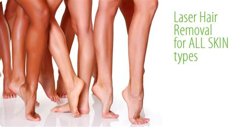 coolglide laser hair removal michigan picture 5