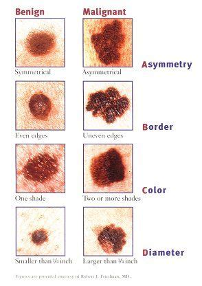 acbd diagnose skin mole picture 7