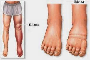 weight loss for edema picture 15