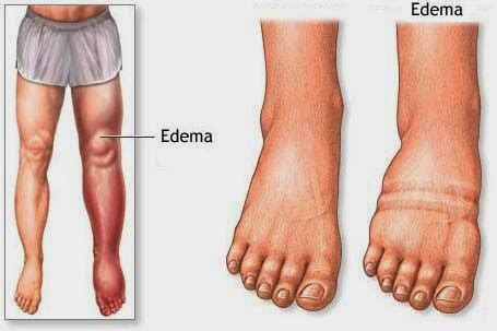 weight loss for edema pateints picture 11