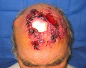 prognisis in squamous skin cell carcinoma picture 1