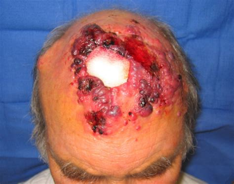 advanced squamous cell skin cancer picture 2