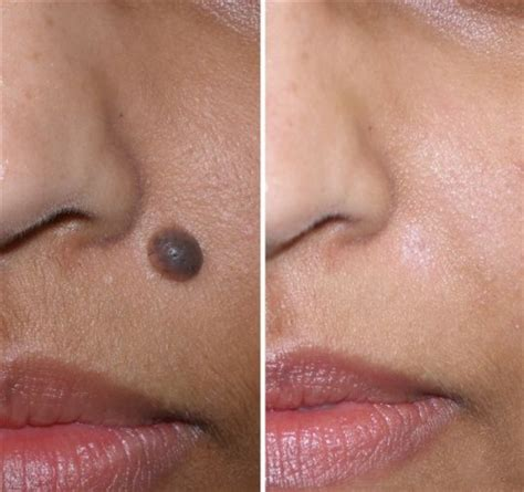 diy skin tag removal picture 5