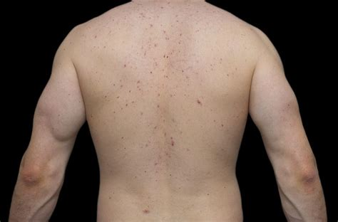 chemotherapy effects on skin picture 17
