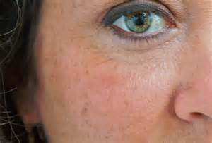 dark skin spot picture 17