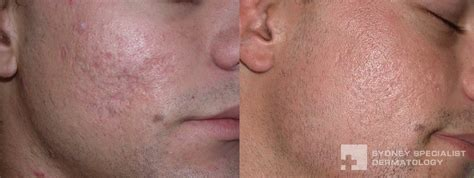 acne scar treatments in houston picture 9
