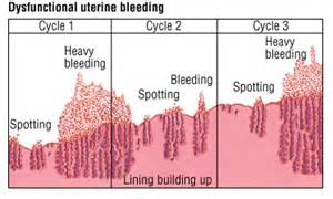 does a low thyroid level cause menstral bleeding picture 6