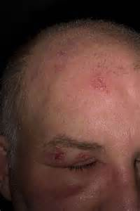 herpes scalp picture 3