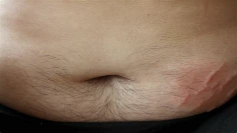 swelling and redness of stretch marks picture 4