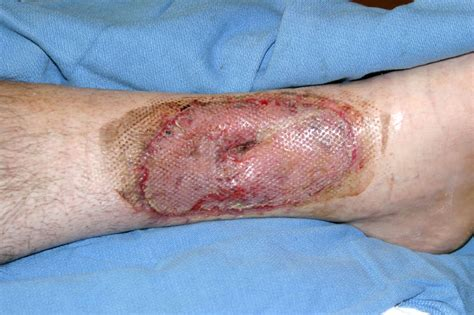 skin burn picture 6