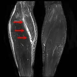 calve muscle tear picture 17