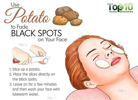 can movate cream reduce spots picture 6