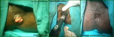 hemorrhoidectomy post op picture 6