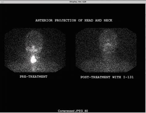 ablation treatment for thyroid cancer picture 9