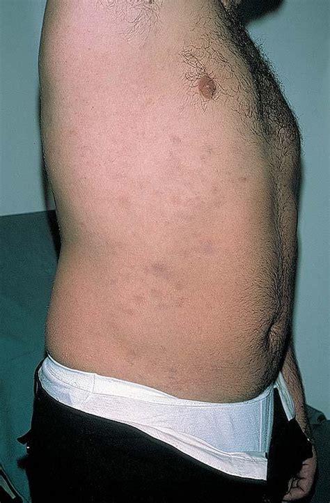ashy skin picture 5