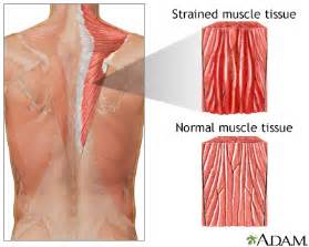 muscle pain in stomach when el movement picture 17