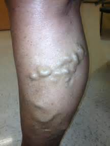 lump in leg muscle picture 21