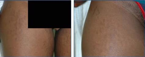 camphor phenol on stretch marks picture 15