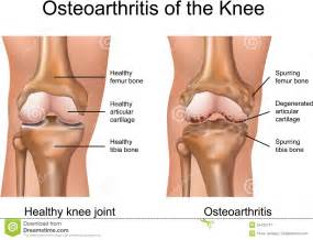knee joint degeneration picture 10