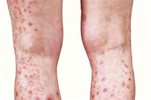 skin lesions of hiv positive patients picture 12