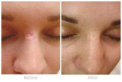 acne scarring treatment picture 2