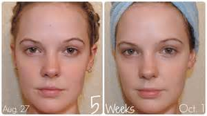 iful cream before and after picture 3