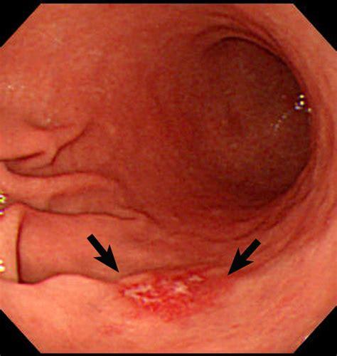 intestinal lymphoma picture 14