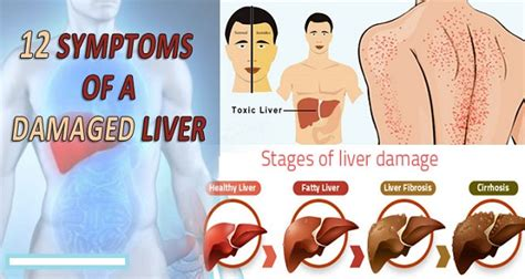 what are the early signs of liver damage picture 11
