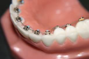 braces on interior teeth picture 2